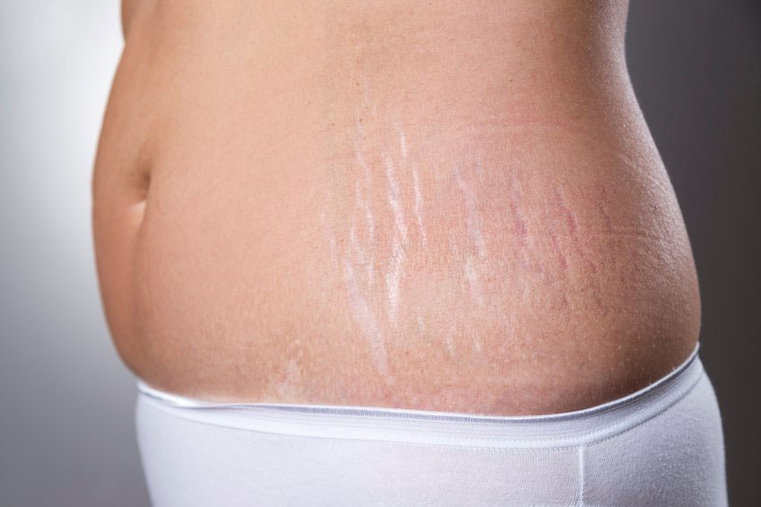 Initial-1 - Completely Remove Stretch Marks in Photoshop